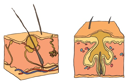 med: Vector illustration of a medical condition acne. Cosmetic disease.