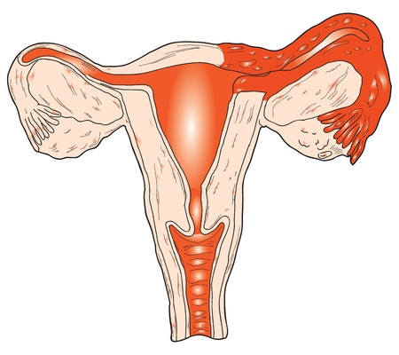Inflammation of the uterus. Vector illustration. Salpingo. Stock Vector - 11252873