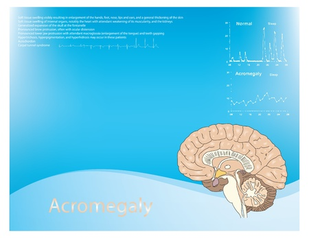 lesions: Acromegaly as a disease background with a pattern lesions in the brain and charts.