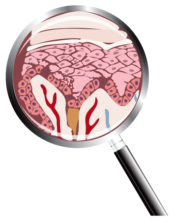 malady: The site of the human skin under a magnifying glass. Albinism. Vector illustration.