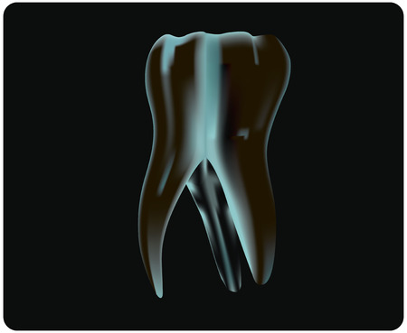 X-ray of the tooth to the dentist examination. Vector illustration. Vector
