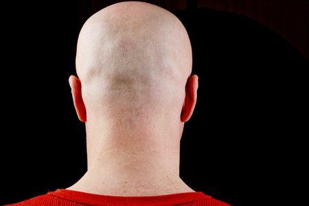 receded: Bald head middle-aged man on a black background. Stock Photo