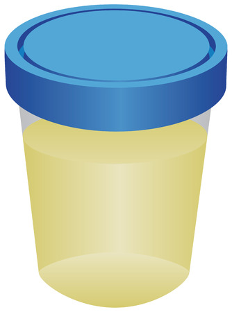 A container with urine for analysis. Vector illustration.