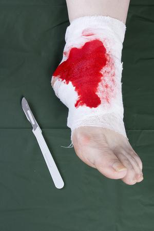 Vendaje de medicina blanco a pie de lesión humana  Foto de archivo