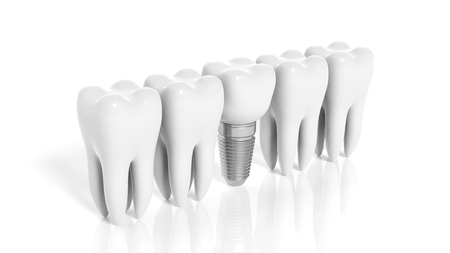 Row of teeth and dental implant isolated on white background