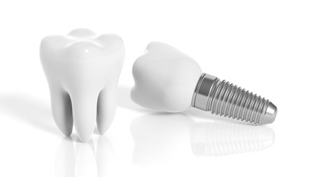 Tooth and dental implant isolated on white background