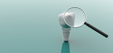 Dental implant and magnifying glass isolated on green background. 3d illustration Standard-Bild