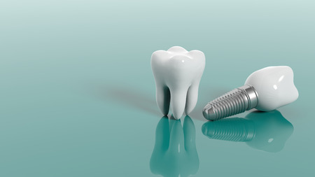 Tooth and dental implant isolated on green background. 3d illustration Stock Photo
