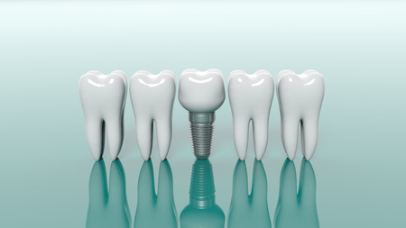 Teeth and dental implant isolated on green background. 3d illustration