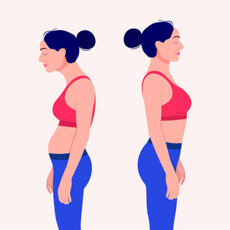 Woman with impaired posture position defect scoliosis and ideal bearing vector Illustration