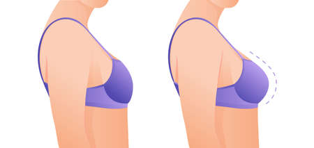 Female breasts in bra before and after augmentation/ breast size correction. Plastic surgery concept.woman body changing from overweight to slim as a result of training, dieting or Fitness workout.