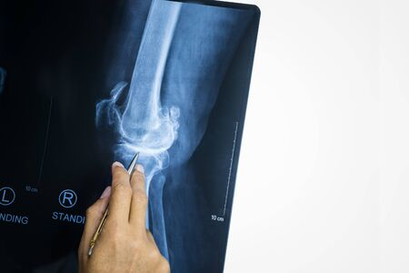 Doctor hans pointing to knee problem x-rays film, Rheumatoid Arthritis concept.