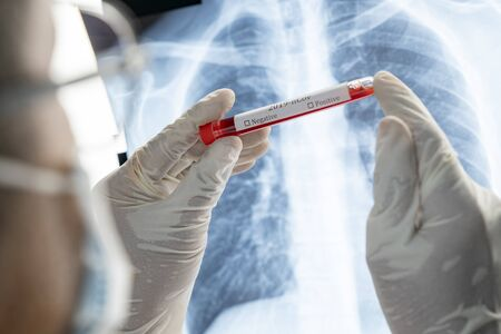 Rear of doctor holding test tube blood has label result on the tube with lung xray background