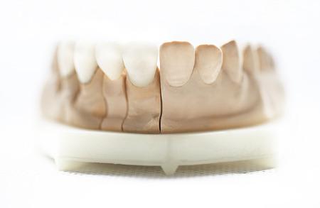 implantation: dental dentist objects