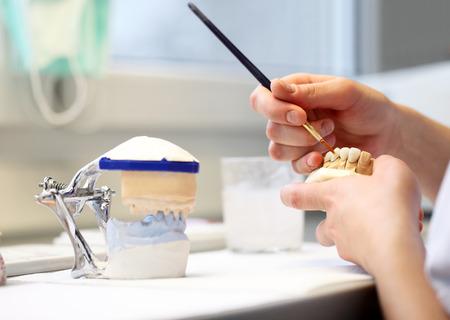 laboratorio dental: dental dentista objetos implantes