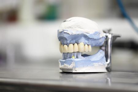 dental dentist objects implants Reklamní fotografie - 26046457
