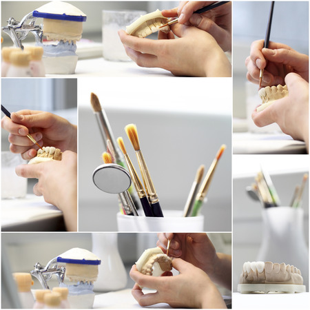 laboratorio dental: collage composición dental dentista objetos implantes