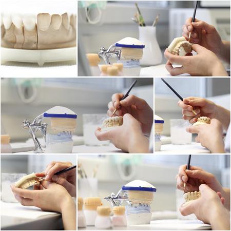 composition collage dentaire dentiste objets implants