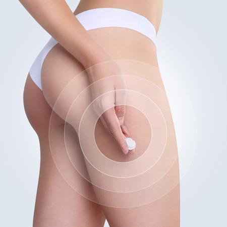 nalga: Hembra que aplica la crema cosm�tica de la celulitis en las nalgas en el fondo blanco