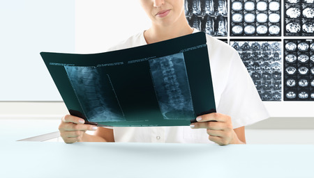 Radiologist woman checking xray, medical and radiology concept Reklamní fotografie