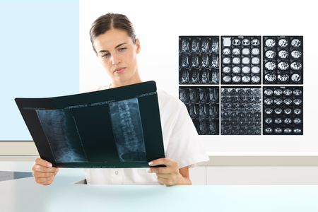 metastasis: Radiologist woman checking xray, medical and radiology concept Stock Photo