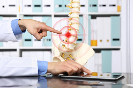 displaced: hand doctor pointing the skeleton of spine, hernia concept causes backache. Stock Photo