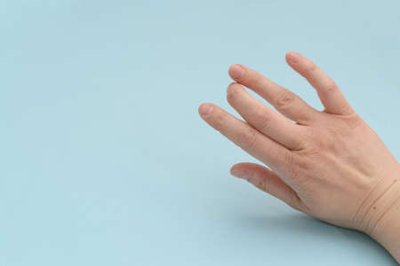 Broken finger.Arm injury after a fall.Injured painful finger after a fracture on a blue background.Joint diseases.Copy space.