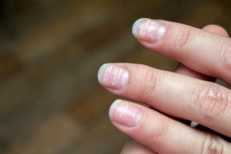 vitamin deficiency avitaminosis anemia nail problem with white dots