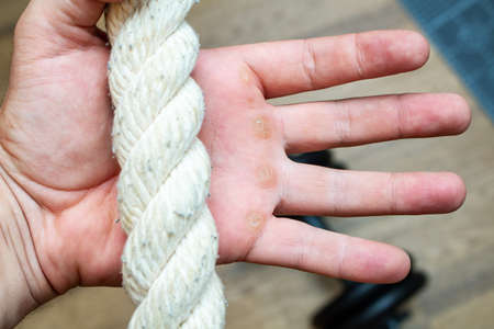 Hand with rope corn, callus, callosity, induration, congelation on the palm because of physical activity sports gym sport concept Standard-Bild