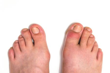 Gout or podagra on the big toe appears as redness and unbearable pain