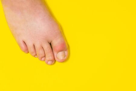 Gout on the big toe appears as redness and a unbearable pain Banque d'images