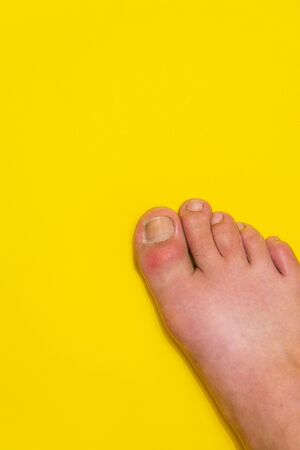 Gout on the big toe appears as redness and unbearable pain Banque d'images