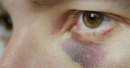 The eye of a man with a bruise and abrasions Reklamní fotografie