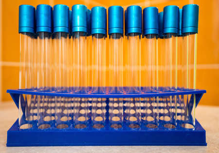 Laboratory test tubes on a stand in the laboratory on the table.