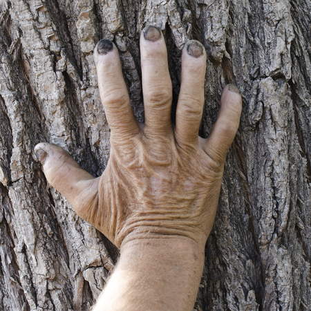 eldest: Old hand on the bark of a tree Stock Photo