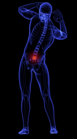 Human body with a visible pain in the lower back Stock Photo - 20095832