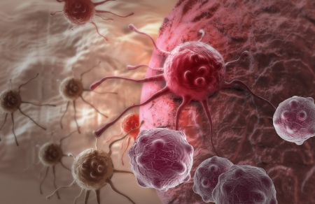 skin cancer: cancer cell made in 3d software Stock Photo
