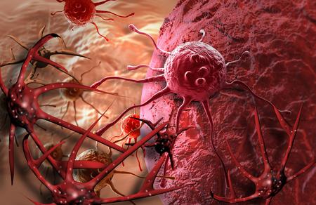 células cancerosas hechas en 3d