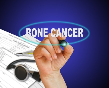 bone cancer: writing  word BONE CANCER    on gradient background made in 2d software