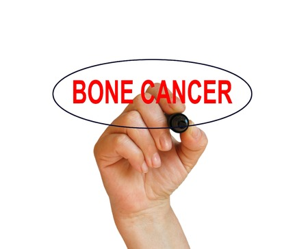 bone cancer: writing word BONE CANCER with marker on white background made in 2d software