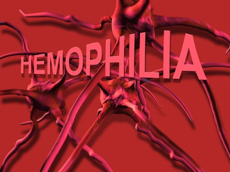 hemophilia: The word Hemophilia   representing the blood disorder or disease that affects people who cannot form clots to close wounds