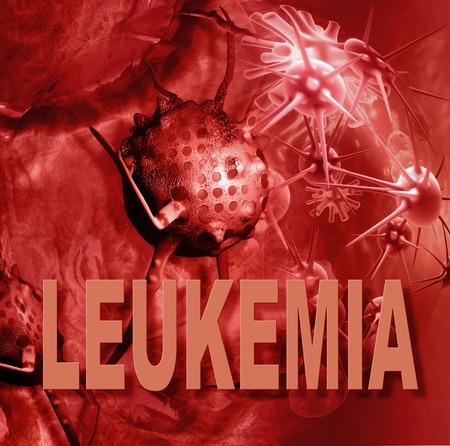 leucemia: las c�lulas de leucemia y palabras hecha en 3D Foto de archivo