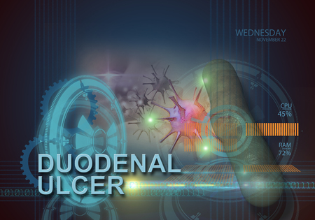ulcer: hi tech infographics of duodenal ulcer made in 3d software Stock Photo