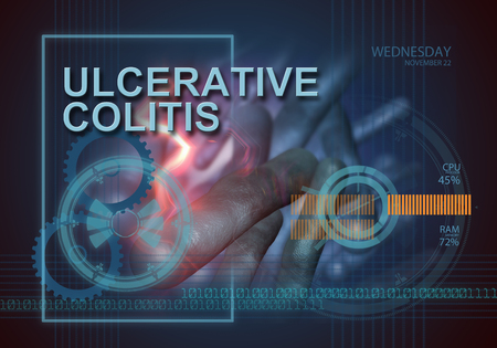 ulcerative colitis: hi tech infographics of ulcerative colitis made in 3d software