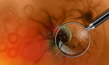 colon cancer: cancer cell made in 3d software Stock Photo