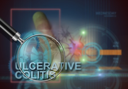 colitis: hi tech infographics of ulcerative colitis made in 3d software