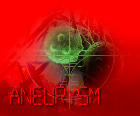 3d Medical illustration of brain aneurysm