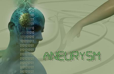 3d Medical illustration of brain aneurysm