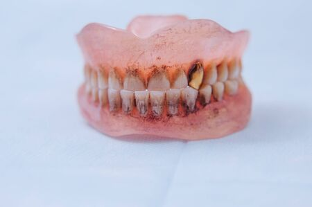 Broken acrylic denture. Dental phantom. Selective focus photo.