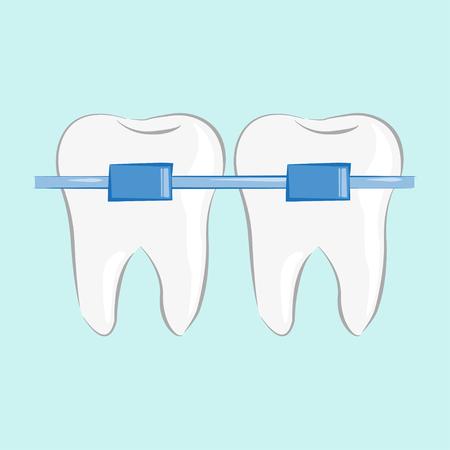 Teeth braces in flat style, vector illustration, stylish design Illustration